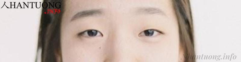 Ánh mắt đờ đẫn