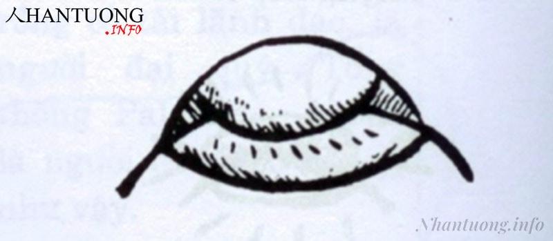 Khóe miệng trễ, môi thâm, miệng túm