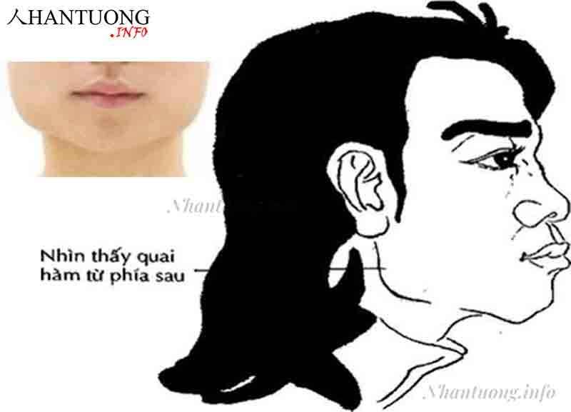 Xương quai hàm bạnh rộng, nhô về phía tai