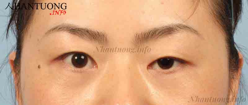 2 mắt không đều, mắt trái lớn hơn mắt phải