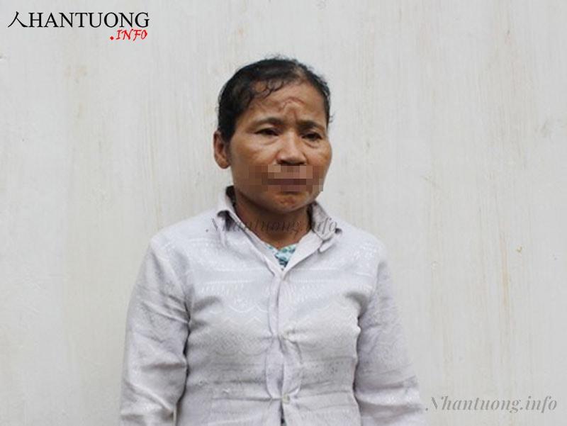 Đối tượng N.T.L sinh năm 1960 tại Nghệ An giết chồng 4/2014 trên trán có sẹo, xương mày thô cứng, cung phu thê hõm