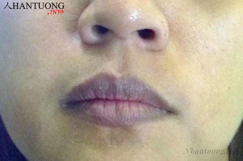 Người có môi nhợt nhạt, thâm tím, răng xiên xẹo
