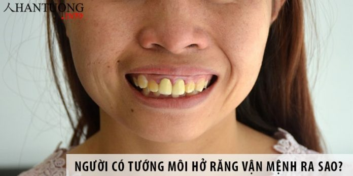 Người có tướng môi hở răng vận mệnh ra sao?