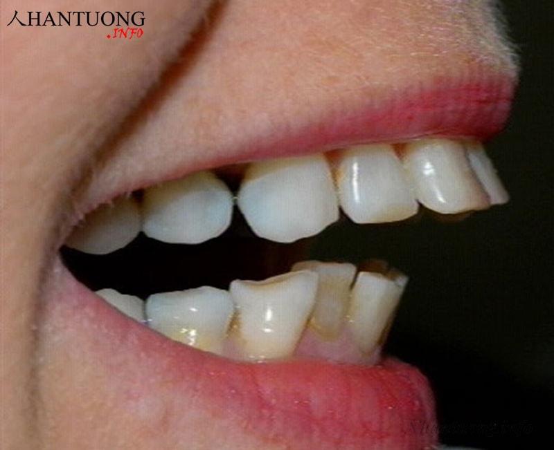 Người có tướng môi hở răng thường bị hô hoặc móm nặng