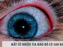 Mắt có nhiều tia máu đỏ có sao không?